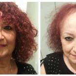 שיער דליל אצל נשים